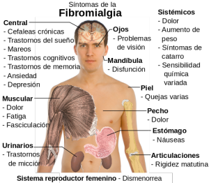 homeopatia en la fibromialgia: