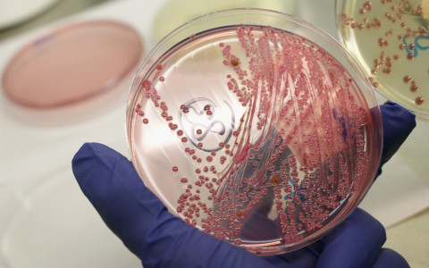 """Las """"superbacterias"""" resistentes a los antibióticos, un problema creciente"""