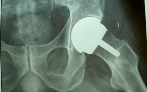 Miles de pacientes se intoxican en Alemania tras operarse de prótesis de cadera
