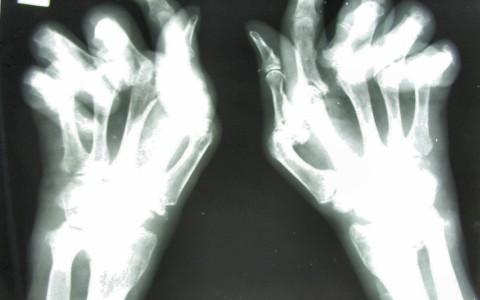 Alimentos que ayudan al tratamiento de la artritis: