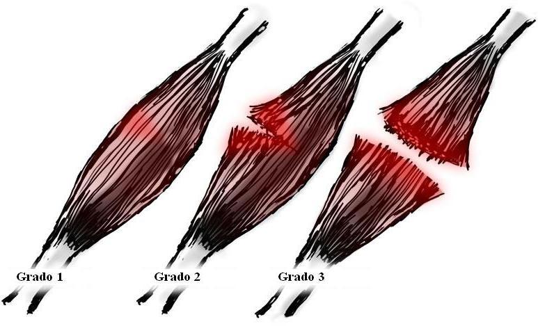 roturas de fibras