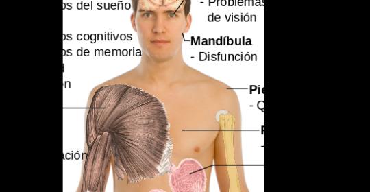 Tratamiento del dolor en la fibromialgia
