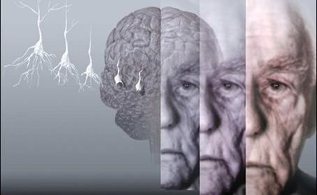 El diagnostico de la enfermedad de Alzheimer