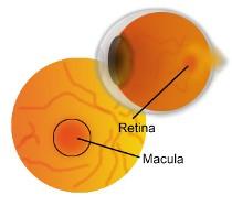 degeneración macular madrid
