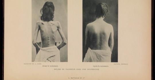 Nuevo estudio sobre la anorexia
