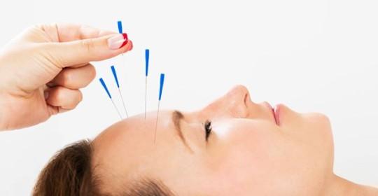 El método de acupuntura YNSA
